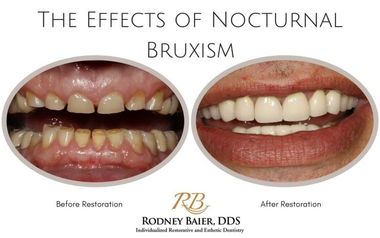 the-effects-of-nocturnal-bruxism